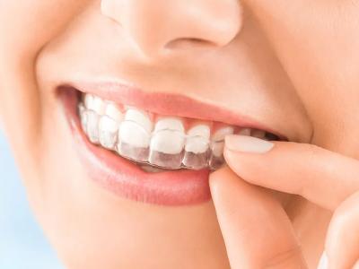 Лечение зубов, где и за сколько?